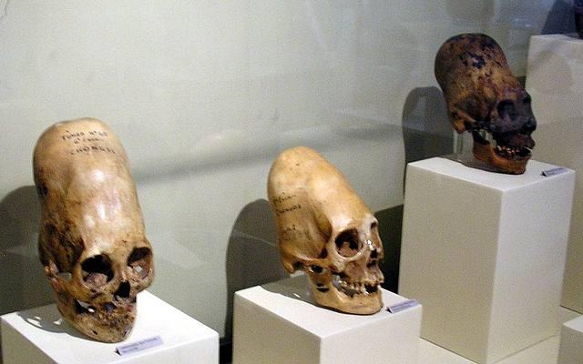 paracas-skulls-ica-museum